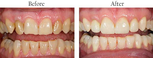 Bloomingdale Before and After Veneers