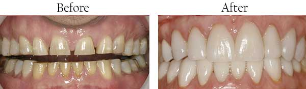 Dental Images near Glendale